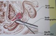 Biopsie de la prostate